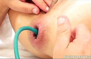 Anal prolapsing before gynecologist